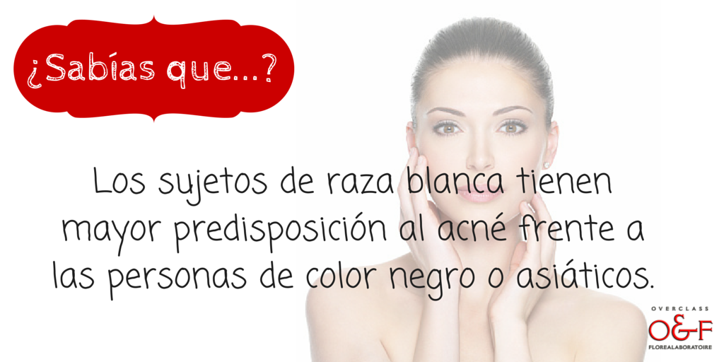 acne-razas