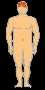 morfologia-sanguinea-overclass